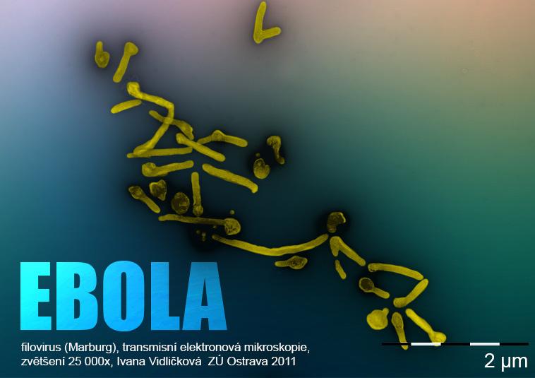 Ilustrační obrázek: filovirus (Marburg), transmisní elektronová mikroskopie, zvětšení 25 000x, Ivana Vidličková  ZÚ Ostrava 2011